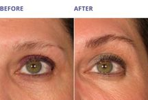 """ULTHERAPY / Ultherapy, otherwise known as the """"No Downtime"""" Lift, is the only FDA approved single treatment procedure to non-invasively lift your eyebrows, neck, mid-face, jaws, and décolleté in 1-2 treatments of collagen stimulation."""