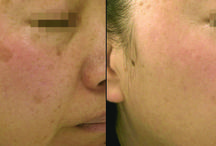 Evolve Laser Treatments