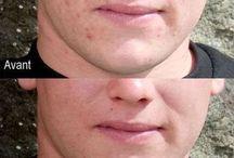 recettes maison contre l'acné