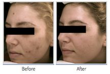 Deep Blue Med Spa Patient Results Gallery