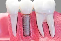 Dental implants/ Fogászati implantáció / Dental implants, the modernest prosthetic method nowadays. Fogászati implantáció, napjaink legkorszerűbb fogpótló eljárása.