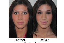 Patient Before & After Photos: SEPTOPLASTY / Check out the Before & After photos of patients who underwent a septoplasty procedure with Dr. Garrett H. Bennett.  Make an appointment for a consultation online at www.sinussurgeryprocedure.com or call our office at (212) 980-2600. We look forward to hearing from you!