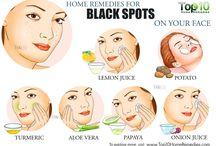 freckles n black spots
