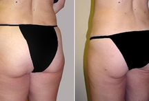 Liposuction Surgery / Before and After Photos of Liposuction