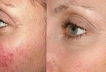 AHA savas hámlasztás / Ez a biológiai hámlasztó minden bőrtípusnál, minden bőrprobléma kezelésénél azonnal látható, érezhető, gyors eredményt tesz lehetővé. Fellazítja és eltávolítja a bőr felszínén elhalt hámsejteket, segíti a bőr megújulását, ráncsimító és felszíni keratinoldó hatása van, javítja a bőr vízmegkötő képességét. Összetevői: alma, szőlő, naspolya, citromcirokolaj Kiválóan alkalmazható olajos és korpás szeboreás, érzékeny, gyulladásra hajlamos, aknés, májfoltos, zsír-, vízhiányos, idősödő és ráncos bőrre.