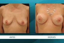 Prótesis de mamas / Cirugía aumentativa mamaria en HOOGSTRA CENTROS MÉDICOS.  ¿Tenés dudas? Conocé todo lo que tenes que saber sobre Prótesis mamarias en este link: http://www.drhoogstra.com.ar/es/tratamientos/cirugias-esteticas-reparadoras/mamas/protesis-de-mamas/