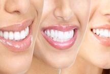 tandsteen verwijderen