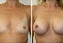 """The """"Girls"""" (Breasts looking their best!)"""