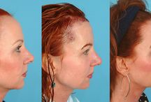 """Hair Transplant Results BEFORE & AFTER / Hair transplant """"before and afters"""" from Bauman Medical Group located in beautiful Boca Raton, Florida. All photos are patients who have given permission to Dr. Alan Bauman for their electronic use. (c) All Rights Reserved. Bauman Medical Group."""