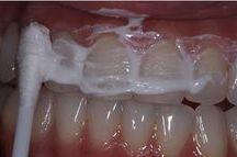 bielenie a vodny kamen zubov