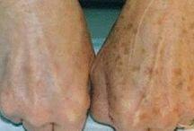tirar manchas da pele