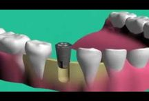 Videos | Mayfield Dentist