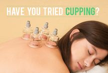 Cupping / cupping therapy, Chinese cupping, cupping benefits, health, wellness, Chinese medicine, acupuncture, stress relief, muscle tension, suction cup therapy