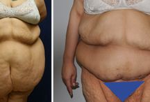 Extreme Weight Loss / Surgical removal of excess skin after extreme weight loss is typically the last step of the transformation from the 'old you' to the 'new you.'  That's why it is so important to know how dramatic the difference Understanding the difference in your outcome is important when considering using your insurance versus paying out of pocket.