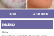 All kinds of Rodan & Fields goodies! / Macro-dermabrasion Amp MD / by Catherine Bost