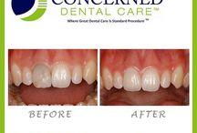 Before and After Images / Before and After images of Concerned Dental Care patients