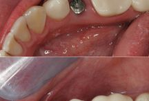 Implantes dental