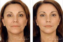 OC Wellness Anti-aging Regenerative Medicine / Bio-identical hormones, injectables, fillers, Restylane, Botox, anti-aging, Sculptra, healthy lifestyle