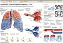 EPOC / EPOC es el acrónimo de Enfermedad Pulmonar Obstructiva Crónica.  Se caracteriza por la presencia de obstrucción crónica y poco reversible al flujo aéreo asociada a una reacción inflamatoria principalmente frente al humo del tabaco, aunque sólo una cuarta parte de los fumadores desarrolla EPOC. Incluye enfermedades como la bronquitis crónica y el enfisema. La EPOC es una enfermedad prevenible, tratable y con repercusión en todo el organismo.  http://www.lovexair.com/html/es/tus_pulmones/epoc/