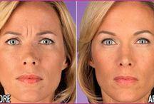 Medical Treatments / Botox - Dysport & Juvederm/Restylane & Platelet Rich Plasma