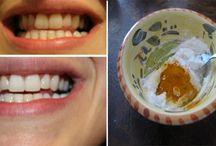 bělění zubů