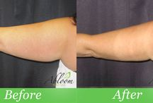 SmartLipo Before & After Photos / See before and after photos from our actual patients.  These results were all treatments done by Dr. Punia at Abloom Med Spa.  We offer free consultations to see if laser liposuction is the right option for you.