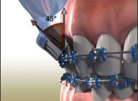 Ortho Education / Everything you need to know about braces