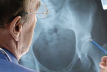 Csontritkulás / A csontritkulás (osteoporosis) mindenki számára ismert fogalom, de főleg az idősebb korosztály tapasztalja a súlyosabb tüneteit, a csonttöréseket