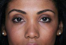 Eyebrow reconstruction transplants / #eyebrows