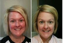 R&F before and after