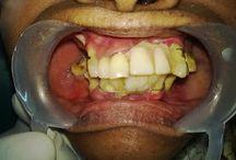 Dental Implants In Chennai