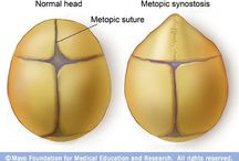 Cranio synostosis.