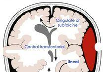 Nöroloji-Nöroşirürji