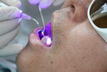 dental laser application
