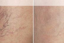 Spider Veins / Spider vein treatment is painless, fast and effective. Get rid of your spider veins at Vena Vascular Lab and Vein Clinic.