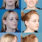Rhinoplasty / Nose surgery in Beverly Hills