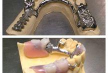 ODONTOIATRIA IMPLANTOLOGIA E CHIRURGIA ORALE / In questa bacheca sono raccolte le migliori immagini dello Studio Acampora relative all'odontoiatria, all'implantologia dentale e alla chirurgia orale in generale.
