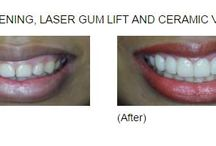 Dental Cases / Dental cases section show treatment before and after images with dental treatment description.