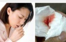 Obat Batuk Darah