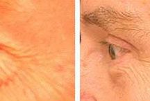 Lose And Empty Out Puffed Eye Bags With Yoga Facial Exercises
