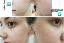 Beauty / Skincare Treatments