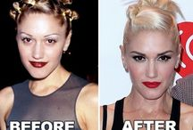 Celebrity Botox / Pictures of celebrities before and after Botox injections. See the shocking transformation these celebs put themselves through!