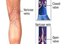 Vein Treatment / Dr. Mark Schwartz is a Triple Board Certified Vein Specialist and Medical Director at the North Shore Vein Center — a vein-dedicated, comprehensive clinic located in Lake Success, NY. We offer an initial complimentary* vein screening to evaluate each patients condition so that we can recommend the appropriate treatment protocol.