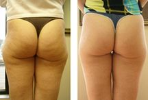 Cellulite Treatment / My link about Cellulite Treatment that work