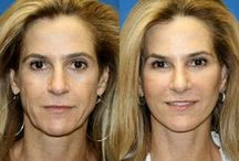 Face Aerobics Produce A Flawless Facelift / Facial Transforming Regimens: At Home Tightening Exercises For The Face And Neck To Reduce Creases