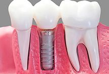 Dental Implants Mosman / Dental implants are artificial tooth roots that are inserted into the jawbone to replace missing natural teeth. Implants and their attached crowns closely mimic the look and function of real teeth. They can make an attractive alternative to dentures and bridges.