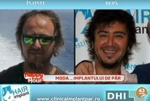 Grafica - Fb - App - Poze A/B - ClinicaImplantPar.ro