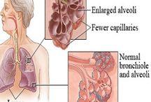 COPD / Chronic Obstructive Pulminary Disease