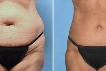 Before & After Cosmetic Enhancement / At CPS Docs, our team of board certified plastic surgeons specialize in tummy tucks, mommy makeovers, facelifts, breast augmentation, skincare, and much more. See these real results from real patients.