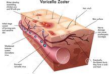 Varicella - Zoster (shingles)